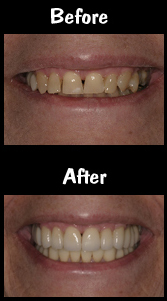 Full Mouth Reconstruction - Porcelain Veneers & Crowns & Bridge