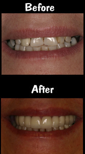 14 Porcelain Veneers