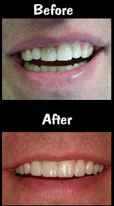 4 Porcelain Veneers