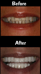 20 Porcelain Veneers & Crowns