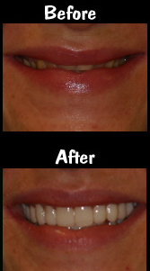 Full Mouth Reconstruction - 28 Porcelain Veneers & Crowns & Implants