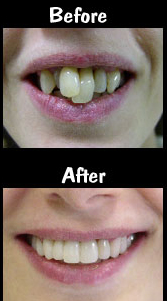 Porcelain Bridge & 2 Porcelain Veneers
