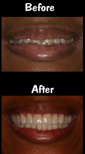Full Mouth Reconstruction - 28 Porcelain Veneers & Crowns