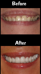14 Porcelain Veneers and Crowns