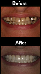 Full Mouth Reconstruction - Dental Implants & Porcelain Veneers & Crowns & Implant Supported Partial Dentures
