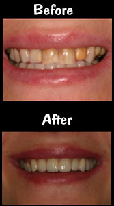 Full Mouth Reconstruction - 28 Porcelain Veneers & Crown