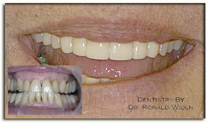 Cosmetic_dentistry_photo