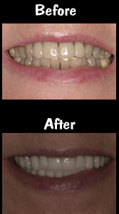 Full Mouth Rehab after TMJ orthotic therapy