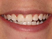 zoom whitening after bleaching