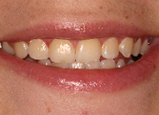 zoom whitening before bleaching